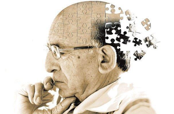جراحی کاهش وزن و احتمال کاهش ابتلا به آلزایمر