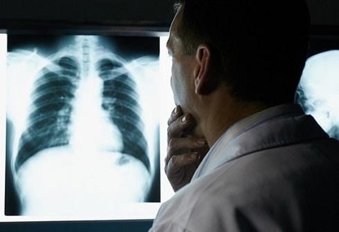 اشعه های رادیولوژی سرطان زا هستند؟!